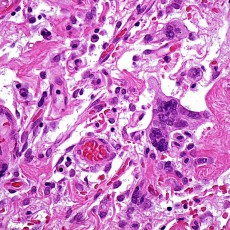 orbital giant cell angiofibroma histology