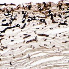 corneal phaehyphomycosis Masson Fontana stain