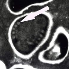 corneal microsporidiosis electron microscopy