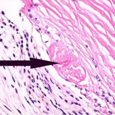Axenfeld-Rieger prominent Schwalbe's line histology