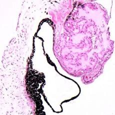 The pathology of evisceration specimens