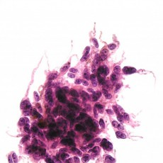 Ocualr Oncology and Pathology: Comparison of GEP and Chromosome 3 Analysis by FISH and MLPA in Fine-Needle Aspiration Biopsy Specimens of Uveal Melanoma