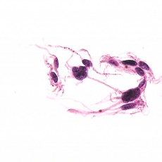 FNA melanoma choroid histology