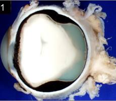 streptococcus acute endophthalmitis gross pathology