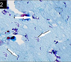 streptococcus acute endophthalmitis