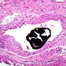 minocycline pigmented concretion conjunctiva histology
