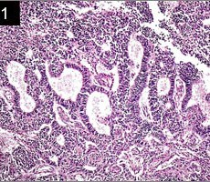 On the Classification and Grading of Medulloepithelioma of the Eye Ocul Oncol Pathol 2016;2:190–193 click here