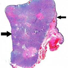 eyelid aprocrine carcinoma histology
