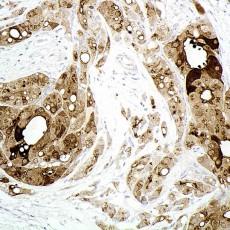 GCDFP 15 staining eyelid apocrine carcinoma