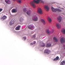 non infectious paraprotein crystalline keratopathy