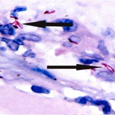 mycobacteria chelonae LASIK histology