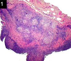 lacrimal gland sarcoid