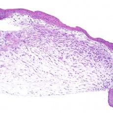 corneal myxoma histology
