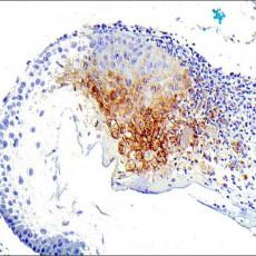 HSV1 immunohistochemistry