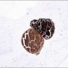 Fine needle aspiration melanocytoma