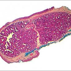conjunctiva dacryoadenoma