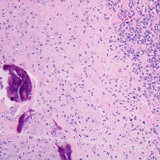 orbital mesenchymal chondrosarcoma