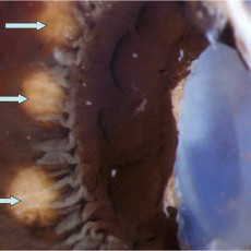 cyclodiode scars