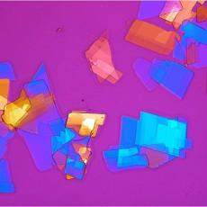 cholesterol crystals anterior chamber Coats disease