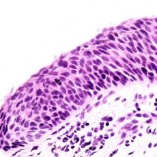 Conjunctival pathology