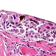 RCPath Conjunctival Melanoma Dataset