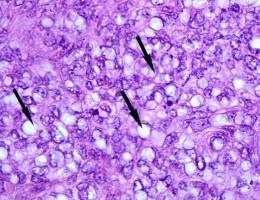 sebaceous carcinoma