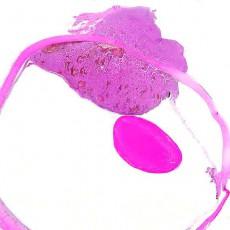 CAP uveal melanoma datset