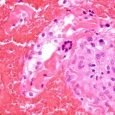 orbital xanthogranuloma Touton