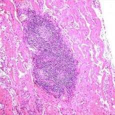 orbital xanthogranuloma