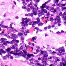 orbit alveolar rhabdomyosarcoma