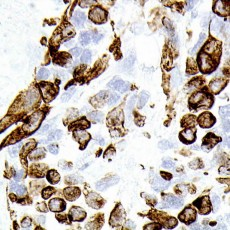 orbit rhabdomyosarcoma Desmin
