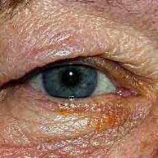 eyelid folliculotropic MF