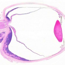 Maltoma amyloid eye