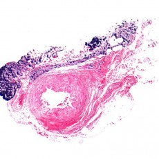 lymphoma temporal artery