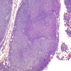 conjunctival follicular lymphoma