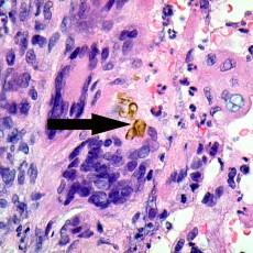 phaeohyphomycosis conjunctiva