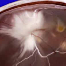 myelinated nerve fibres retina
