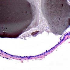 Ductal hidrocystoma with contents
